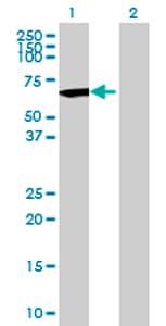 Western blot - C17orf57 antibody (ab70517)