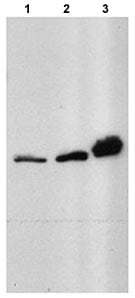 Western blot - HRPT2 antibody (ab70533)