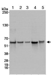 Western blot - BAF57/SMARCE1 antibody (ab70540)