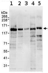 Western blot - KDM4A / JHDM3A / JMJD2A antibody (ab70786)