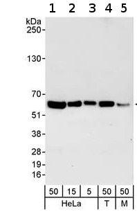 Western blot - RCC2 antibody (ab70788)