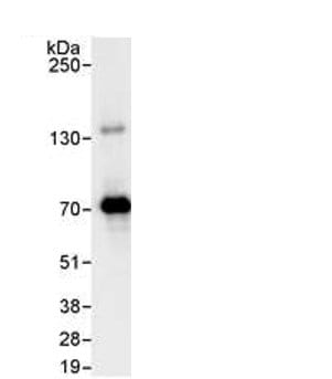 Immunoprecipitation - PPM1G antibody (ab70794)