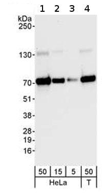Western blot - PPM1G antibody (ab70794)
