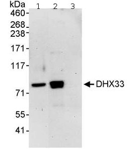 Immunoprecipitation - DHX33 antibody (ab70863)