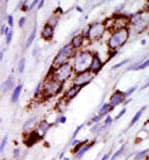 Immunohistochemistry (Formalin/PFA-fixed paraffin-embedded sections) - GRK5 antibody - C-terminal (ab70877)