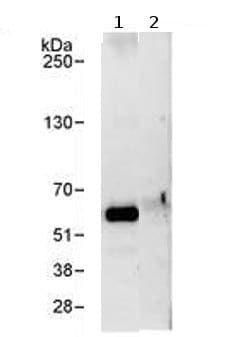 Immunoprecipitation - P4HA2 antibody (ab70887)