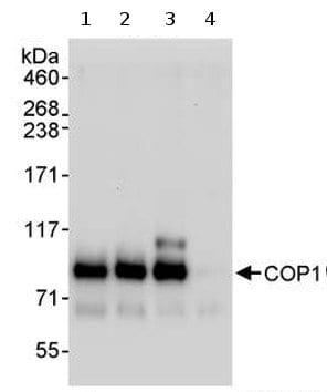 Immunoprecipitation - COP1 antibody (ab70890)