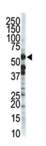 Western blot - ZMPSTE24 antibody - Carboxyterminal end (ab70952)