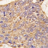 Immunohistochemistry (Formalin/PFA-fixed paraffin-embedded sections) - SCGN antibody (ab71098)