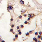Immunohistochemistry (Formalin/PFA-fixed paraffin-embedded sections) - TESK2 antibody (ab71132)