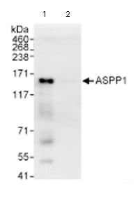 Immunoprecipitation - ASPP1 antibody (ab71164)