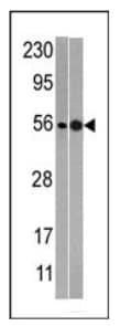 Western blot - NMD3 antibody (ab71313)