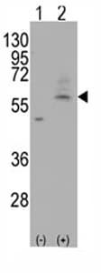 Western blot - SLC29A4 antibody - Carboxyterminal end (ab71382)