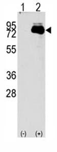 Western blot - NUAK2 antibody - Aminoterminal end (ab71398)