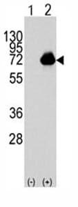 Western blot - ACOX1 antibody - Carboxyterminal end (ab71483)