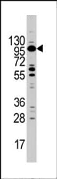 Western blot - Myosin 1C antibody (ab71486)