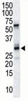 Western blot - Calcipressin 1 antibody (ab71487)