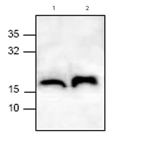 Western blot - TTC11 antibody (ab71498)
