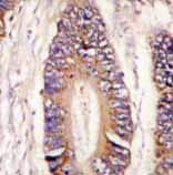 Immunohistochemistry (Formalin/PFA-fixed paraffin-embedded sections) - MLK4 antibody - N-terminal (ab71510)