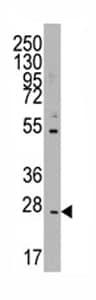 Western blot - CD8 beta antibody - Aminoterminal end (ab71530)