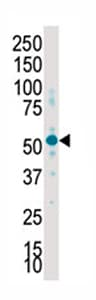 Western blot - SGK2 antibody - Carboxyterminal end (ab71616)