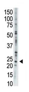 Western blot - Adenylate Kinase 1 antibody - C-terminal (ab71621)