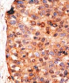 Immunohistochemistry (Formalin/PFA-fixed paraffin-embedded sections) - APOBEC3G antibody - C-terminal (ab71634)