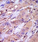 Immunohistochemistry (Formalin/PFA-fixed paraffin-embedded sections) - CK1 epsilon antibody - Carboxyterminal end (ab71687)