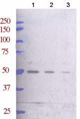 Western blot - ARFGAP1 antibody - C-terminal (ab71759)