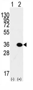 Western blot - MBD3 antibody - Carboxyterminal end (ab71777)