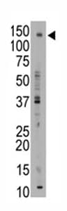Western blot - ABCB11 antibody - Carboxyterminal end (ab71793)