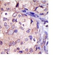 Immunohistochemistry (Formalin/PFA-fixed paraffin-embedded sections) - RNF144 antibody - Aminoterminal end (ab71807)