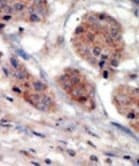 Immunohistochemistry (Formalin/PFA-fixed paraffin-embedded sections) - PI4K2A antibody - N-terminal (ab71824)