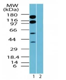Western blot - TR150 antibody (ab71985)