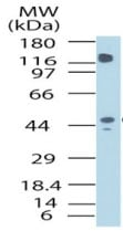 Western blot - GPCR HM74 antibody (ab72112)