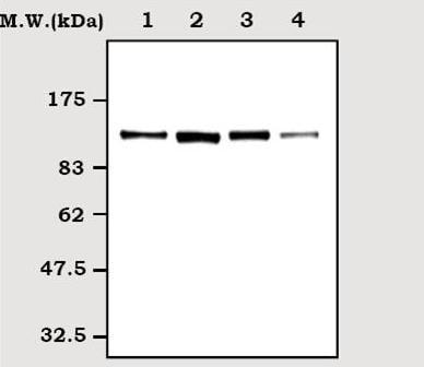 Western blot - FAK antibody [63D5] (ab72140)