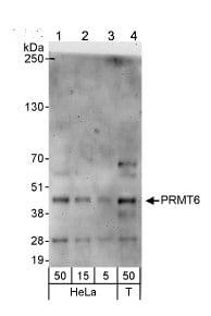 Western blot - PRMT6 antibody (ab72205)