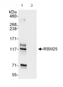 Immunoprecipitation - RBM25 antibody (ab72237)