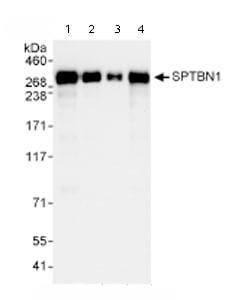 Western blot - SPTBN1 antibody (ab72239)