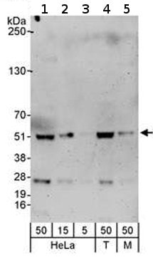 Western blot - RbAp46 antibody (ab72457)