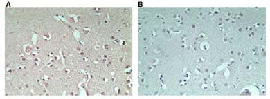 Immunohistochemistry (Formalin/PFA-fixed paraffin-embedded sections) - RNF128 antibody (ab72533)