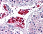 Immunohistochemistry (Formalin/PFA-fixed paraffin-embedded sections) - HIPK3 antibody (ab72538)