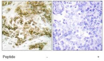 Immunohistochemistry (Formalin/PFA-fixed paraffin-embedded sections) - TBX15 + TBX18 antibody (ab72587)