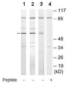 Western blot - TBX15 + TBX18 antibody (ab72587)