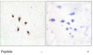 Immunohistochemistry (Formalin/PFA-fixed paraffin-embedded sections) - MVK antibody (ab72588)