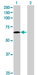 Western blot - SLC27A6 antibody (ab72654)