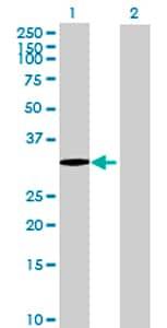 Western blot - PRR6 antibody (ab72723)