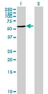 Western blot - AGPAT7 antibody (ab72726)