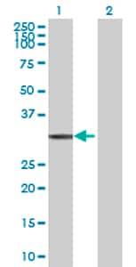 Western blot - NAT1 antibody (ab72734)