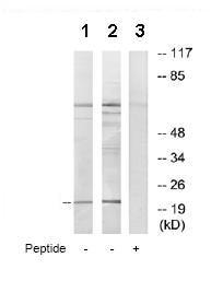Western blot - MOBKL2C antibody (ab72756)